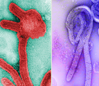Comparison of the Marburg virus and the Sudan ebolavirus under a microscope