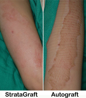 Picture of two arms with skin grafts, one with StrataGraft and one with an autograft.  Healing is much more effective on the arm with StrataGraft.
