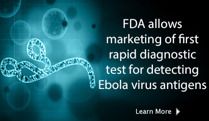 FDA allows marketing of first rapid diagnostic test for detecting Ebola virus antigens. Learn More.